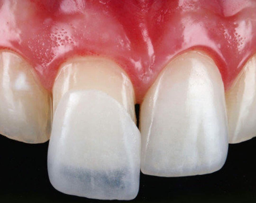 виниры протезы для зубов купить